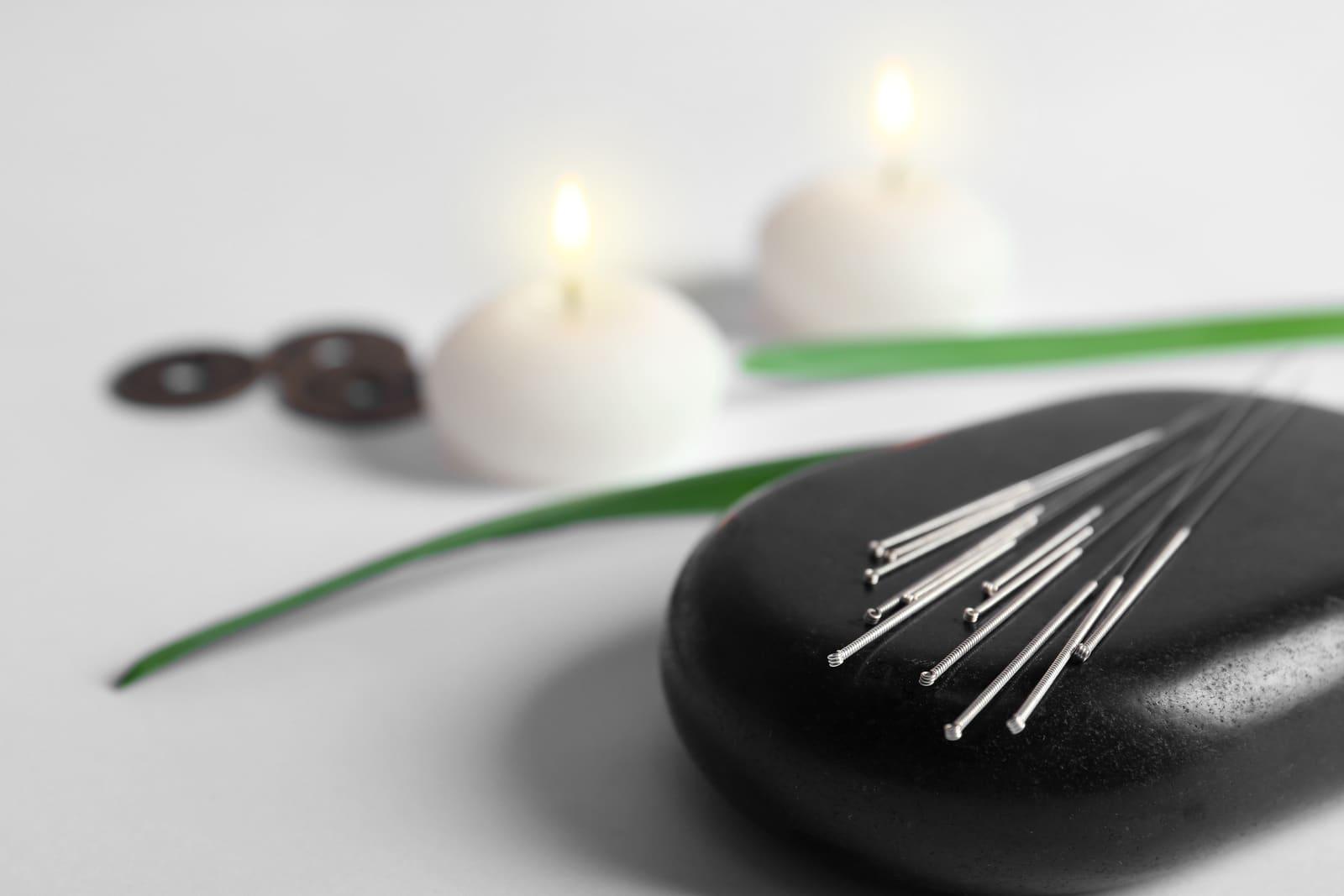 acupuncture-sleep-allergies